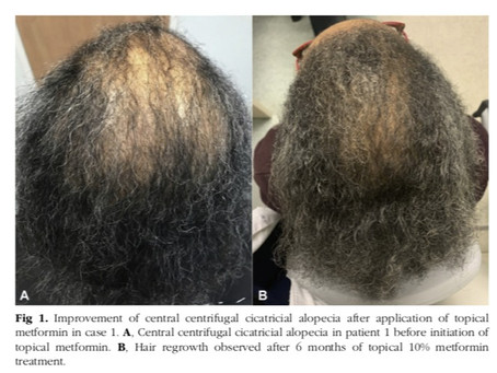 Topical Metformin Shows Potential Benefit for Late Stage Central Centrifugal Cicatricial Alopecia
