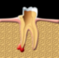 Root_Canal_clip_image003.jpg