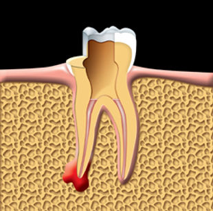 Root_Canal_clip_image004.jpg