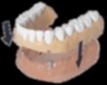 ds_denture.png