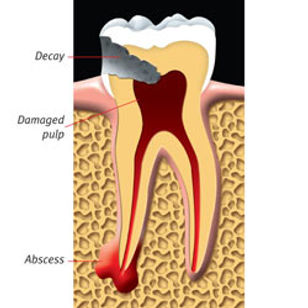 Root_Canal_clip_image002.jpg
