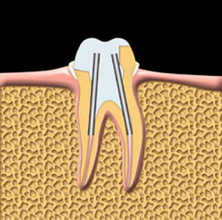 Root_Canal_clip_image005.jpg