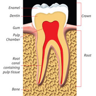 Root_Canal_clip_image001.jpg