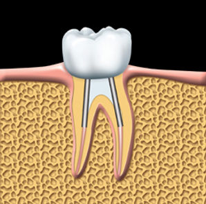 Root_Canal_clip_image006.jpg