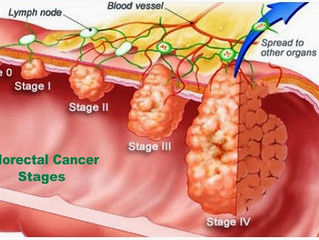 Colorectal cancer symptoms