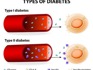 A guide to insulin-dependent diabetes (type 1 diabetes)