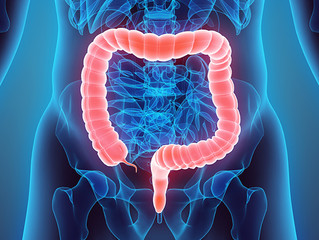Colorectal cancer symptoms and prevention.