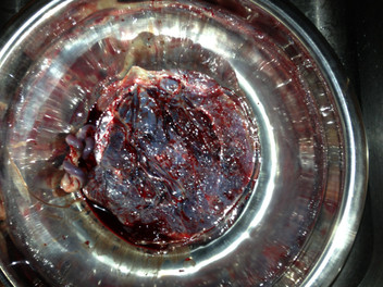 Placenta Encapsulation in Richmond, VA