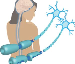 Fizioterapeut kao putokaz - MULTIPLA SKLEROZA (MS)
