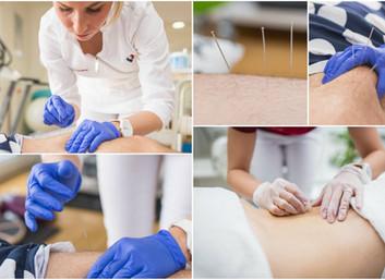 Fizioterapeut i Dry needling