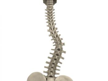 Fizioterapeut kao putokaz - SKOLIOZA