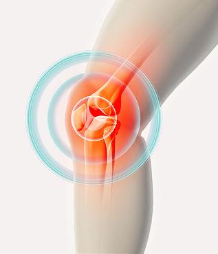 cond-arthritis.jpg