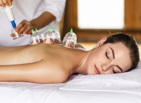 5 Reasons Why Cupping Therapy Would Be Good For Your Health