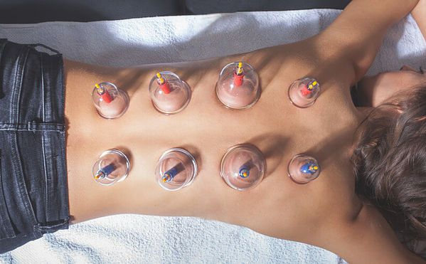 Cupping Orange County | Nutritionist