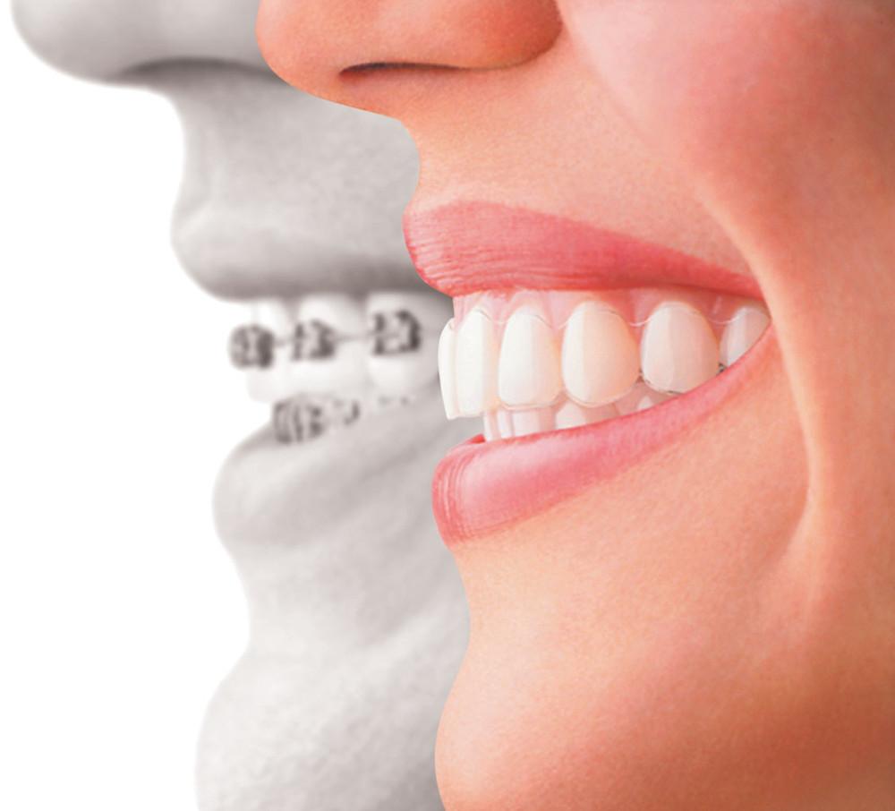 Invisalign Mona Vale Family Dentists gentle dental care including Paedodontics General Preventive Orthodontics Invisalign Root Canal Dentures Onsite Prosthetist Gum Tint