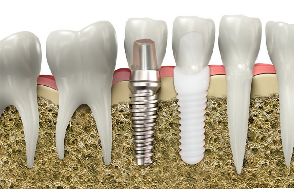 dental implant Mona Vale Family Dentists gentle dental care including Paedodontics General Preventive Orthodontics Invisalign Root Canal Dentures Onsite Prosthetist Gum Tint