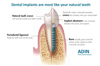 Dental implants are most like your natural teeth