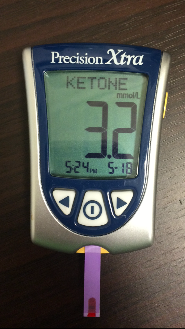 3.2 mmol/L Ketone blood meter