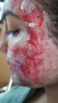 face burns 2.jpg