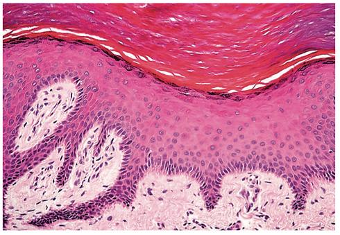 Skin histology.png