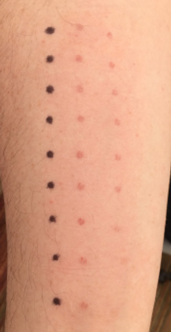 Vascular damage on my arm.png