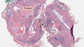 HIGH YIELD: Mucoepidermoid Carcinoma