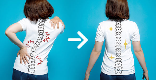chiropractic before after image. from ba