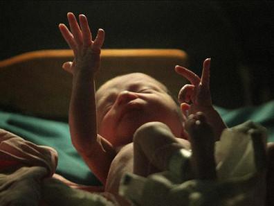 'Isso não é um bebê. É um aborto!': a tragédia de bebês nascidos vivos durante a prática do aborto