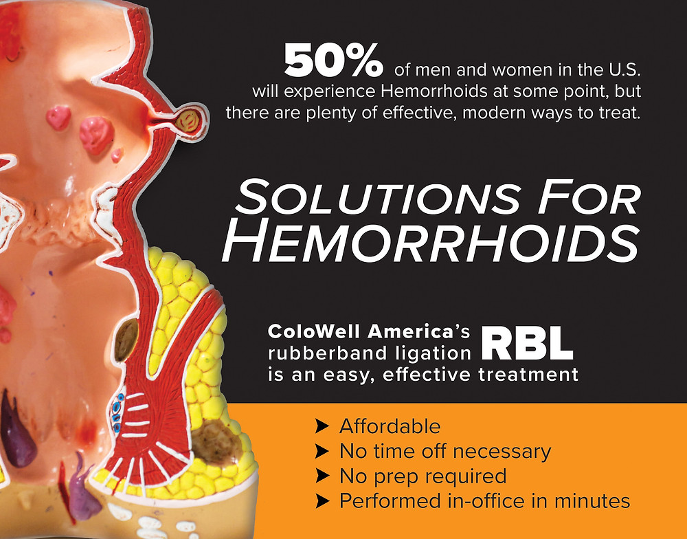 Depiction and content about hemorrhoids and the non-surgical rubber band ligation treatment option