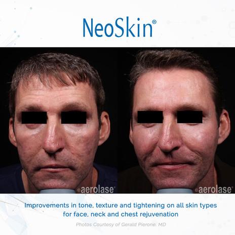 Male NeoSKin.jpg