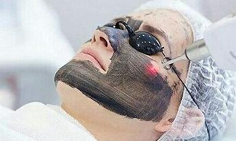 laser facial.jpg