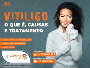 Vitiligo: o que é, causas e tratamento