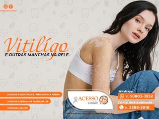 Saiba o que são Manchas na Pele e Vitiligo