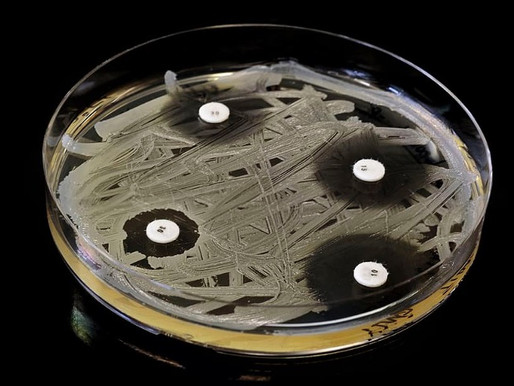 4-Aminobenzaldehyde: A Novel Antibiotic Based on 4-Aminobenzoic Acid and trans-Cinnamaldehyde