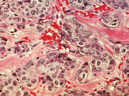 Artificial Intelligence in the Detection of Breast Cancer