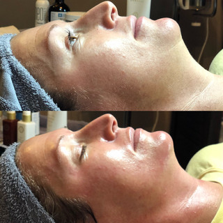 Dermaplaning with a peel.