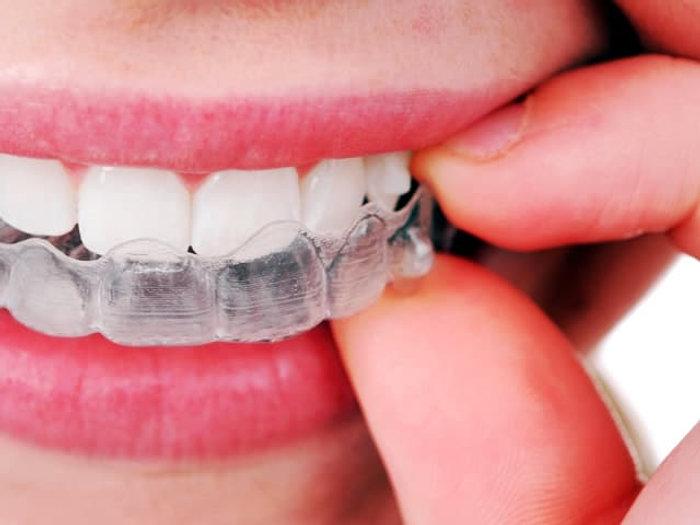 apparecchio-denti.jpg