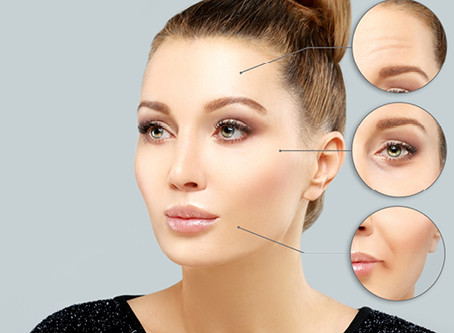What to Expect in my Botox Treatment?