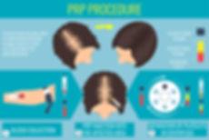 PRP_Procedure-1280x853.jpg