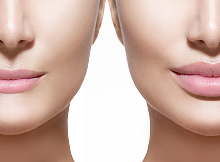 Dermal Fillers: Are You a Good Candidate?