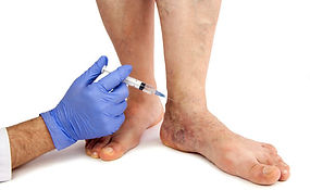 injection-sclerotherapy.jpg