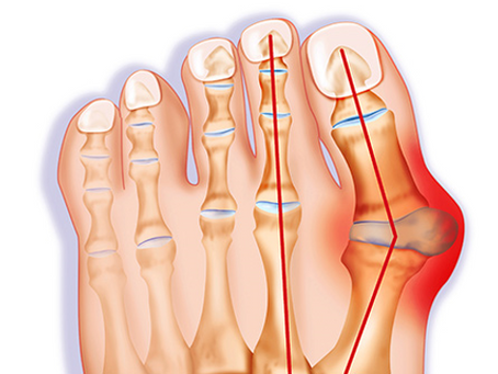 Bunions: Causes, symptoms and treatment options