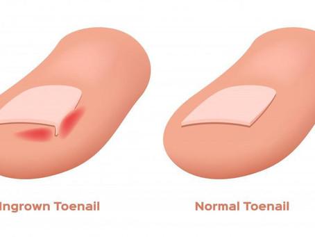Do you suffer from an ingrown toenail?
