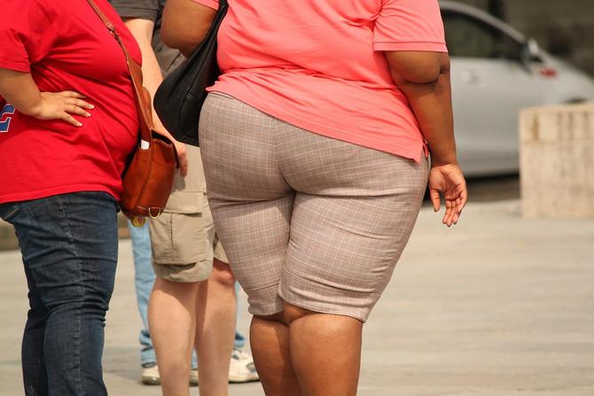 Ожирение у молодых женщин удваивает риск рака кишечника