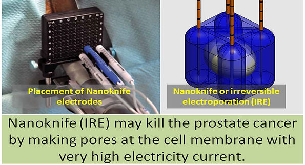 Nanoknife ablation (Irreversible electroporation) in prostate cancer.
