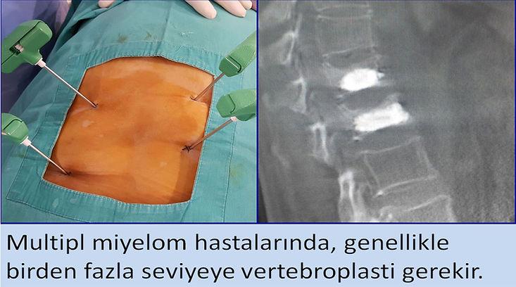 Multipl miyelom hastalarında, genellikle birden fazla seviyeye vertebroplasti gerekir