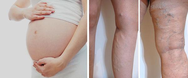 Venöz yetmezlik ve büyük varisi olan kadınlar hamilelikten önce tedavi olmalıdırlar.