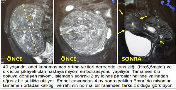 DEV MİYOMDA EMBOLİZASYON
