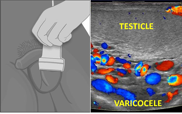 Color Doppler ultrasound is the most practical method in diagnosis of varicocele.