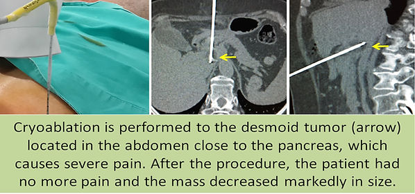 Cryoablation for the intraabdominal desmoid tumors.